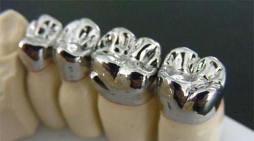 коронка металлокерамическая